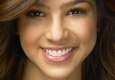 Behel Mempercantik Gigi