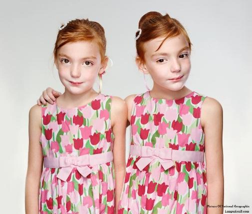 Kembar Identik